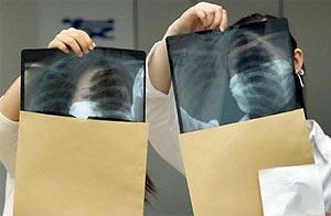 Descubren arveja brotada en el pulmón de un paciente