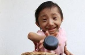 El hombre más pequeño del mundo sería de Nepal: 55 centímetros. Foto/Ap