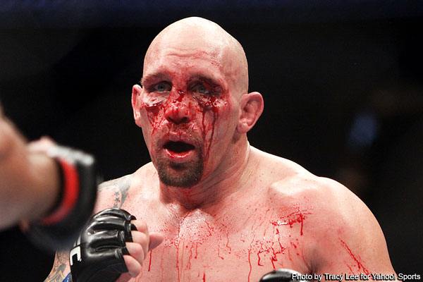 Dos Santos' vicious attack locks up title shot and leaves Carwin's nose broken