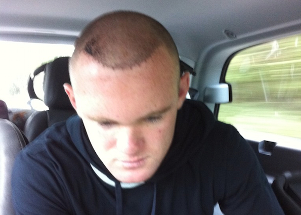 Rooney shows off his hair transplant before he probably should have