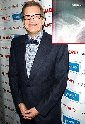 Ouch! Drew Carey Separates Clavicle During Jog
