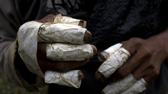 This June 20, 2015 photo shows the fingers of laborer Walter Perez wrapped in tape as a form of protection when removing coca leaves from their stems. Pickers earn about 33 cents per kilo (2.2 pounds) of coca leaf, adding up to about $16 a day for the average yield. (AP Photo/Rodrigo Abd)