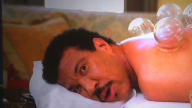 Lionel Richie Clearly Doesn't Like Cupping