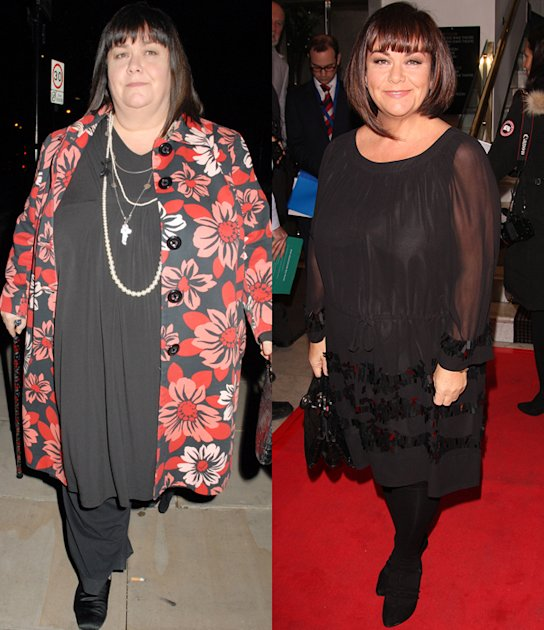 Dawn French Weight Loss Amazing weight loss - ...