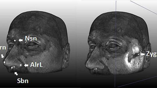 5 Face-Shaping Genes Identified