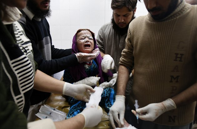 A Pakistani baby girl injured in a rocked attack by militants, is treated at a local hospital in Peshawar, Pakistan on Saturday, Dec. 15, 2012. Militants fired three rockets at an airport in the north