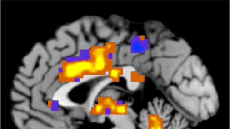 Doctors use brain scans to 'see' and measure pain