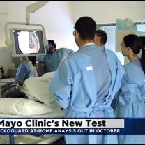 Mayo Clinic To Offer At-Home Screening Test For Colon Cancer