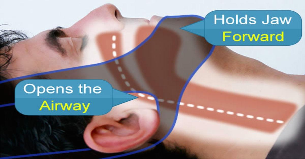 Jaw support device proven to stop snoring.