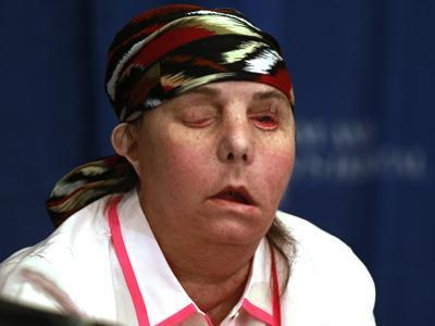 Vt. Woman Disfigured in Attack Reveals New Face