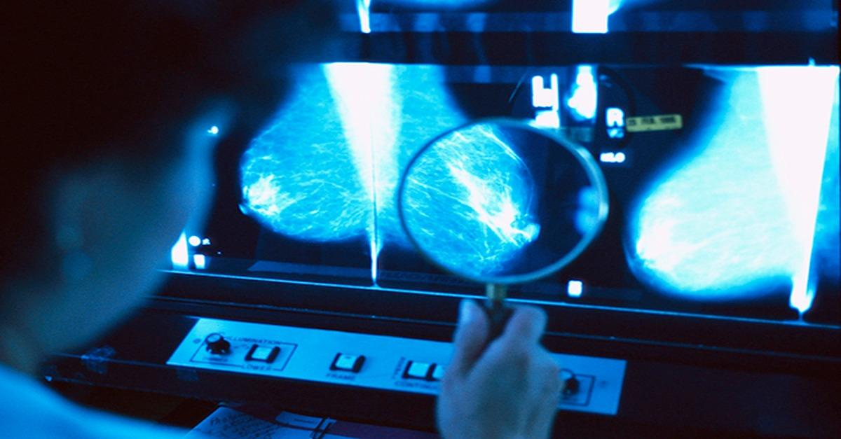 What's Your Breast Cancer Risk?