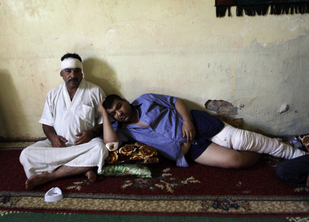 Injured brothers Ali Abbas, left, and Ahmed Abbas, rest in their house after being injured in a late-night car bombing Monday near a cafe in al-Amin Shiite neighborhood in eastern Baghdad, Iraq, Tuesday, July 24, 2012. Violence shook more than a dozen Iraqi cities Monday, killing more than 100 people in coordinated bombings and shootings and wounding twice as many in the country&#39;s deadliest day in more than two years. (AP Photo/Khalid Mohammed)