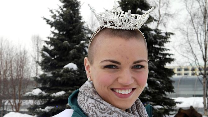 Miss Chugiak-Eagle River Debbe Ebben poses for a photo on Wednesday, March 14, 2012, in Town Square Park in Anchorage, Alaska, as a moose lies near a tree in the background . Ebben, who will compete for the title of Miss Alaska in June, had her head shaved to raise money for the St. Baldrick's Foundation, which gives grants for child cancer research. (AP Photo/Dan Joling)