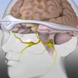 Migraine-Relieving Headband Approved by FDA