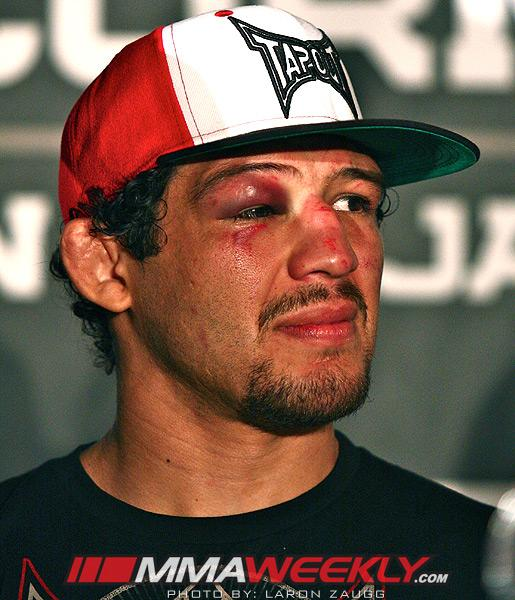 Strikeforce Cancels Show After Gilbert Melendez Suffers Training Injury