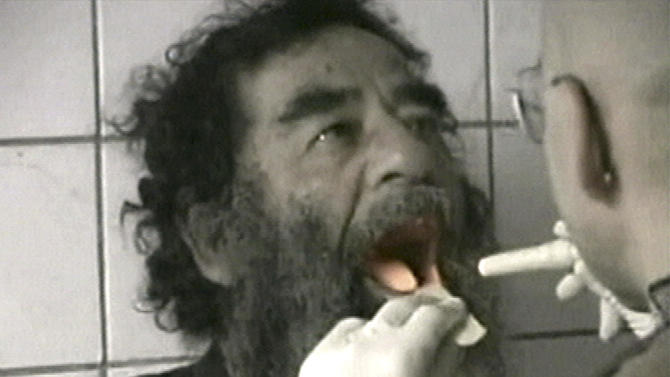 FILE - Captured former Iraqi leader Saddam Hussein undergoes a medical examination in Baghdad on Dec. 14, 2003 in this image made from video. (AP Photo/US Military via APTN, File)