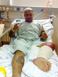 Mark Hunt Suffers Another Setback, May Have to Return to the Hospital Next Week