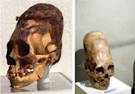 paracas-elongated-skulls-were-they-human