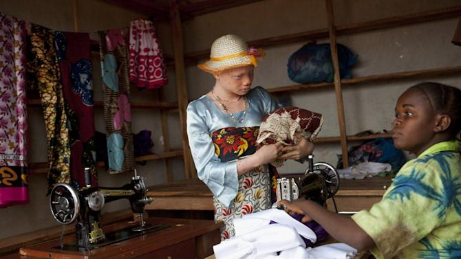 This photo taken Aug. 27, 2012 shows Angel Salvatory, who has skin cancer, buying cloth at the Kabanga Village market in Kabanga, Tanzania. Young women who live at the center may venture out to the local market but are encouraged to travel in a group for safety and not to stay out long. In danger from witch doctors, Tanzania's albinos hope their government will start to offer more help. (AP Photo/Jacquelyn Martin)