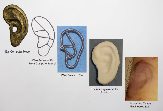 In this July 2, 2012 copy photo a chart provided by the Laboratory for Tissue Engineering and Organ Fabrication at Massachusetts General Hospital, depicts the progression, from left to right, of impla