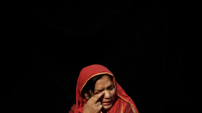 In this Sunday, Aug. 5, 2012 photo, Pakistani Shamiza Nazir, 45, who was injured in a suicide bombing in Lahore, on January, 25, 2011, reacts while posing for a picture, in Lahore, Pakistan. To many victims of Taliban violence, the idea of negotiating with people responsible for so much human pain is abhorrent. Their voices, however, are rarely heard in Pakistan, a country where people have long been conflicted about whether the Taliban are enemies bent on destroying the state or fellow Muslims who should be welcomed back into the fold after years of fighting.(AP Photo/Muhammed Muheisen)