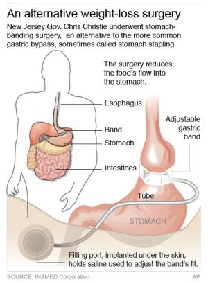 Graphic shows a stomach- reduction surgery called Lap-Band Adjustable Gastric Banding