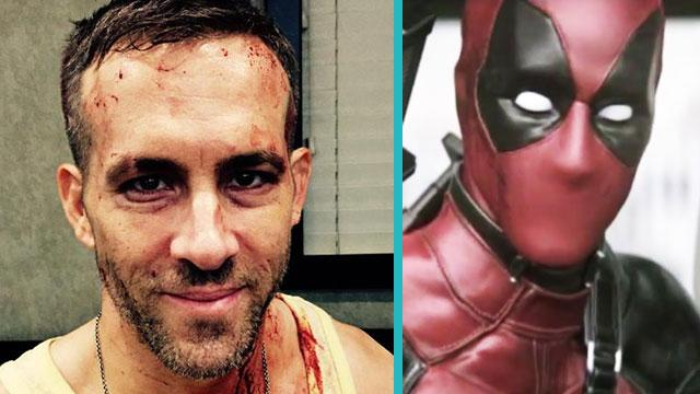 'Deadpool' Star Ryan Reynolds Shares New, Bloody Production Photo