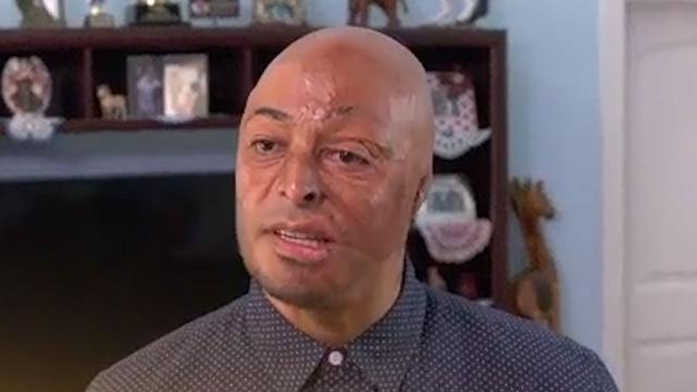 'DWTS' Winner J.R. Martinez Admits He Was Questioning His Life After His Accident