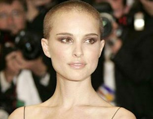 Female Celebrities Who Went Bald