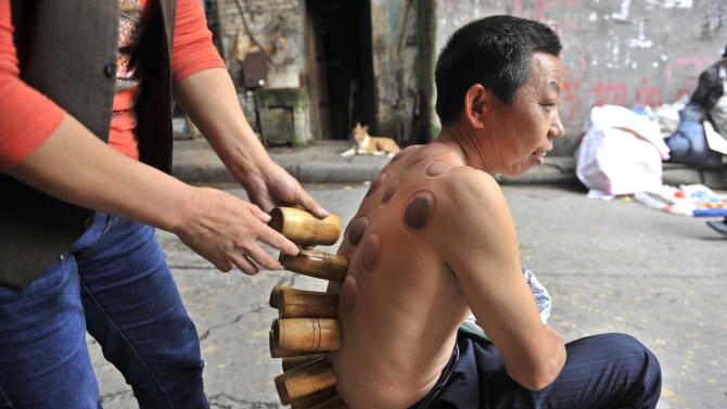 A man undergoes cupping treatment at the roadside in Chongqing's old downtown, day after its former mayor Bo Xilai was expelled from top party positions and would be handed over for criminal investigation accused of multiples crimes