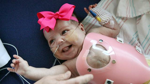 Baby Born With Heart Outside Body Goes Home