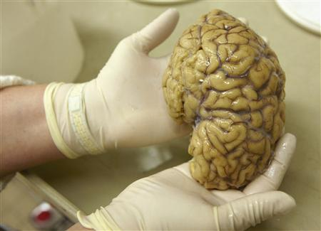 A laboratory assistant holds one hemisphere of a healthy brain in the Morphological unit of psychopathology in the Neuropsychiatry division of the Belle Idee University Hospital in Chene-Bourg near Geneva in this March 14, 2011 file photo. REUTERS/Denis Balibouse/Files