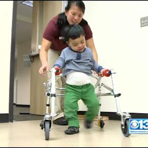 Sacramento State, Easter Seals Aim To Get Kids Walking With Mini-Treadmills