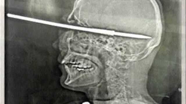 Man shoots himself in the face with harpoon gun