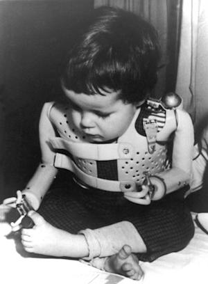 "FILE - In a 1965 file photo provided by the U.S. Department of Health, a three-year-old girl, born without arms to a German mother who took the drug thalidomide, uses power-driven artificial arms fitted to her by Dr. Ernst Marquardt of the University of Heidelberg in Germany. Pharmaceutical company Gruenenthal, German manufacturer of anti-morning sickness drug thalidomide, has for the first time apologized to people who were born with congenital birth defects as a result of its use. Chief executive Harald Stock said Friday, Aug. 31, 2012 that the company had failed to reach out ""from person to person"" to the victims and their mothers over the past 50 years. (AP Photo/File)"
