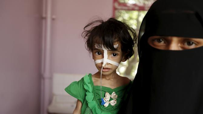 Woman holds her malnourished daughter at a hospital in Yemen's capital Sanaa