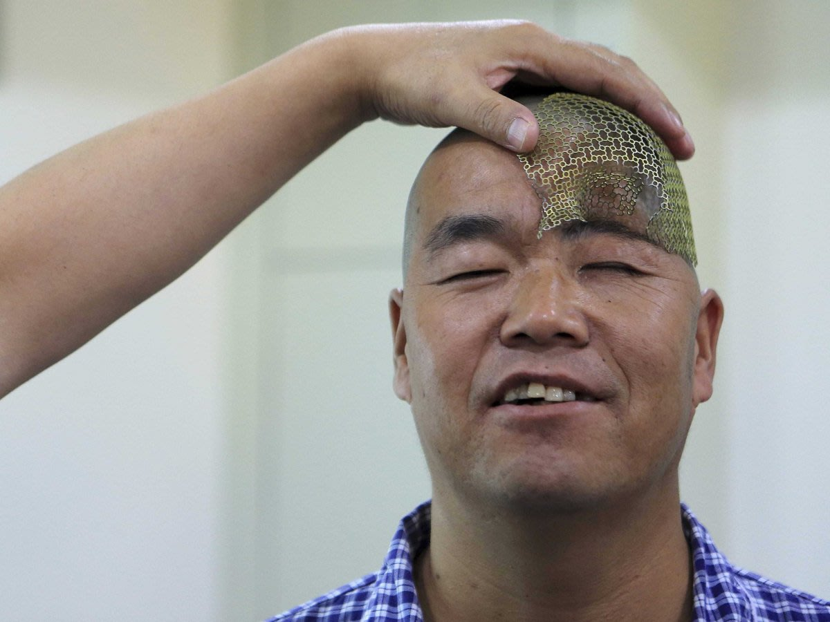 Chinese man's crushed head replaced with 3D printed titanium skull by doctors - ozara gossip