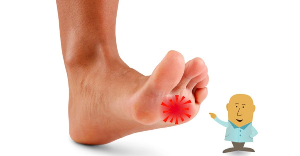 How to Get Rid of Needle-Like Prickling in Feet