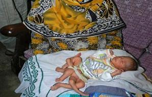 طفل يولد بستة 6 أرجل
