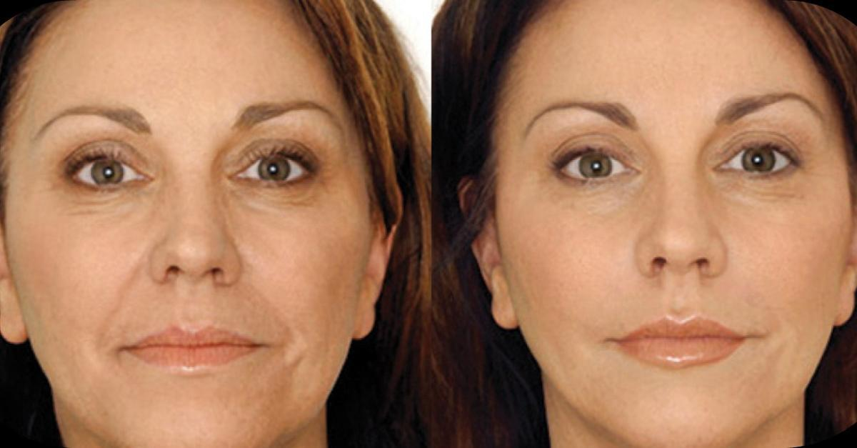 Stem Cell are now used in Anti-Aging creams
