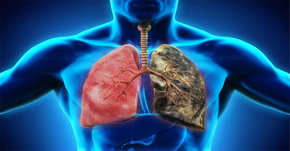 Cut Out Your Lung Disease With Adult Stem Cells