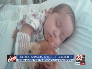 2-Year-Old boy born with 1 lung, undergoes surgery to fill void in his chest