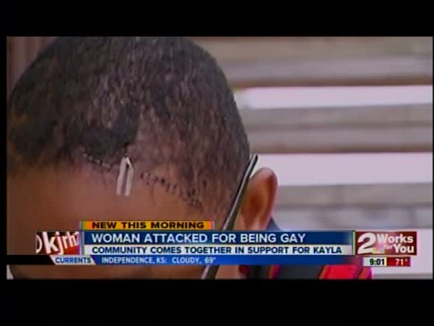 Former TU woman attacked