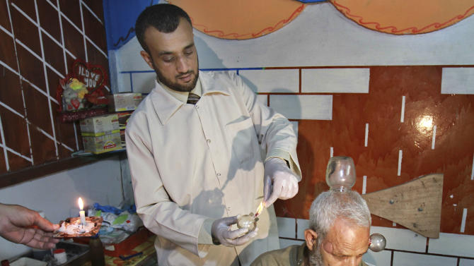 In this Monday, June 11, 2012 photo, Anwar Sheikh-Eid, 42, performs Hijama or cupping therapy, to Palestinian patient Musa Sheikh El Eid at his shop in the southern Gaza Strip city of Rafah. Cupping is an ancient form of alternative medicine whose advocates believe it improves blood flow and helps relieve a range of ailments from headaches to arthritis. (AP Photo/Adel Hana)