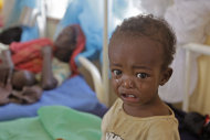 A malnourished child cries at a field hospital of the International Rescue Committee, IRC, in Dadaab, Kenya, Wednesday, Aug. 3, 2011. Dadaab, a camp designed for 90,000 people now houses around 440,000 refugees. Almost all are from war-ravaged Somalia. Some have been here for more than 20 years, when the country first collapsed into anarchy. But now more than 1,000 are arriving daily, fleeing fighting or hunger.(AP Photo/Schalk van Zuydam)