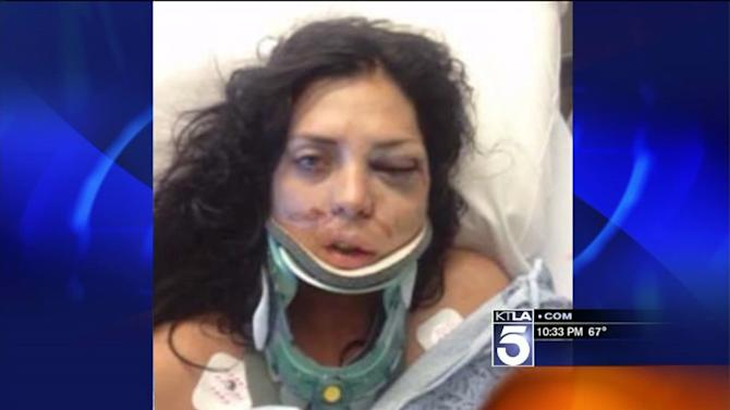 Model Sues Bay Area Police Claiming Officers Broke Her Face During Arrest
