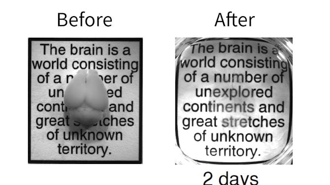 """This undated image provided by Karl Deisseroth's lab shows a combination of photos of an intact adult mouse brain before and after the two-day CLARITY process. Scientists have made mouse brains transparent, permitting a comprehensive and exquisitely detailed view of their inner structures, providing a major new tool for research. """"You get the big picture without losing track of the details,'' said Dr. Karl Deisseroth, who led the Stanford team that reported the work online Wednesday, April 10, 2013 in the journal Nature. Some other labs are already working to apply the technique on other kinds of tissue, such as for studying breast cancer biopsies, Deisseroth said. (AP Photo/Karl Deisseroth)"""