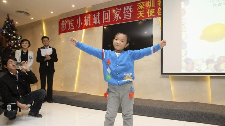 Guo Bin attends his farewell party after successful orbital implants surgery which restored his appearance but not his sight, in Shenzhen