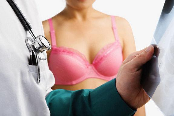 Breast Cancer Prevention Drugs Recommended for High-Risk Women