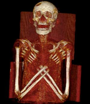 Ancient Egyptian Mummy Suffered Rare and Painful Disease